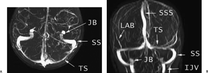 Temporal Bone Vascular Anatomy Anomalies And Disease With An