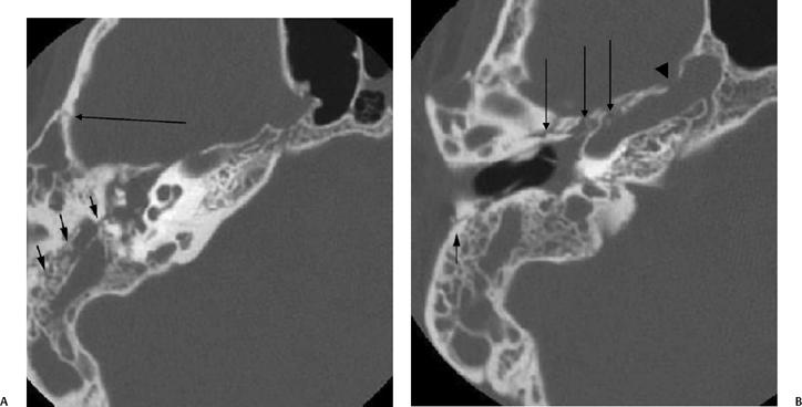 Temporal Bone Trauma Radiology Key