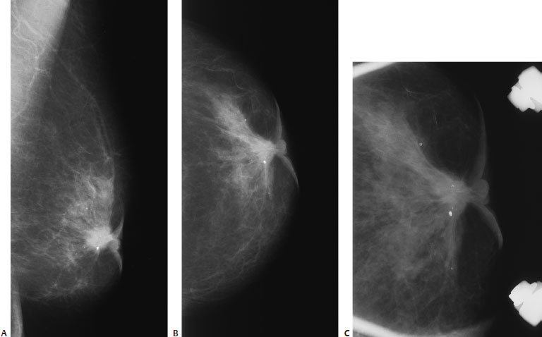 8.3 There is a spiculated subareolar mass associated with calcifications,  skin thickening, and nipple retraction. (A) Left MLO mammo-gram.