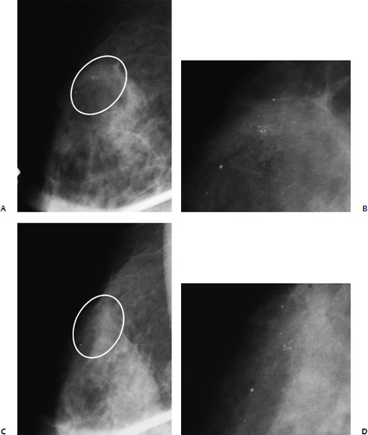 Punctate calcifications in breast