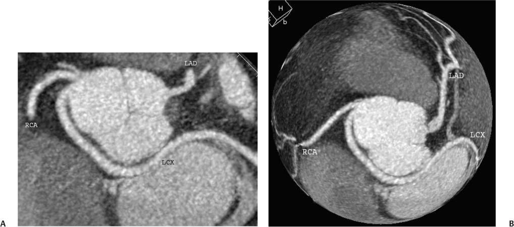 Coronary Anomalies Radiology Key