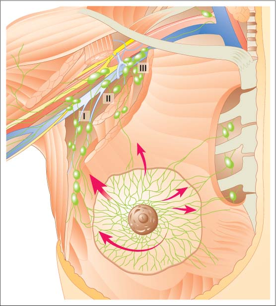 Sentinel Lymph Node Mapping And Dissection