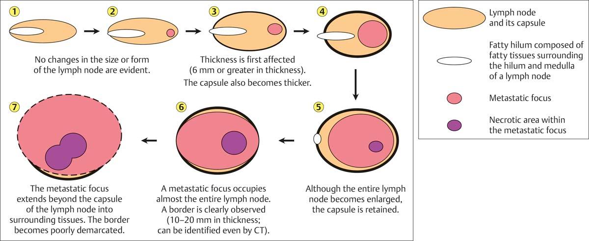 Neck Lymph Nodes | Radiology Key