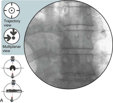 Thoracic Zygapophysial Joint Nerve Medial Branch Injection