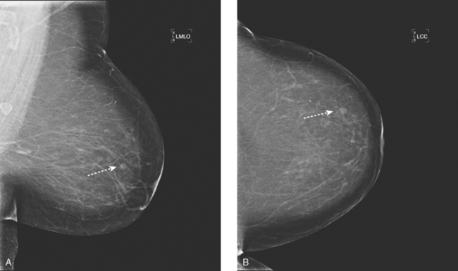 Detection Of Breast Cancer Screening Of Asymptomatic Patients