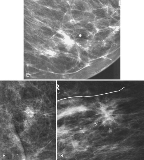 calcified breast nodules Input