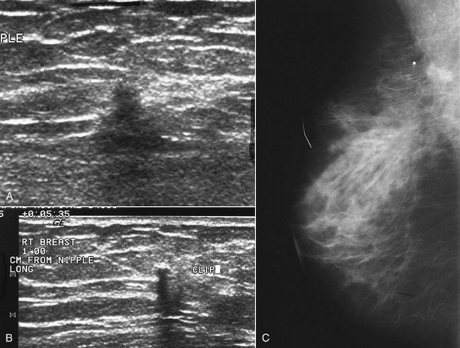 Breast in fibrocystic lumps