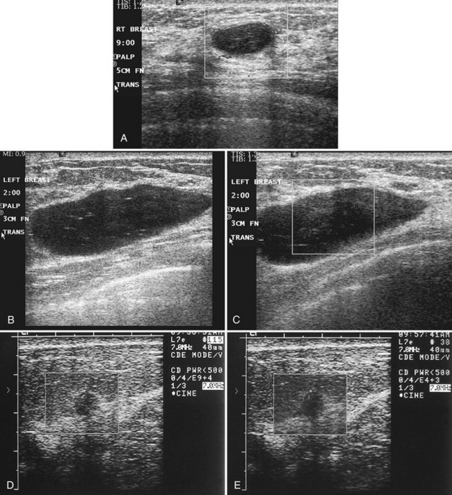 Breast Ultrasound Radiology Key