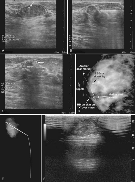 Mammographic And Ultrasound Guided Breast Biopsy
