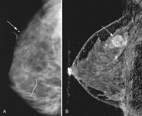 The Application of Breast MRI in Staging and Screening