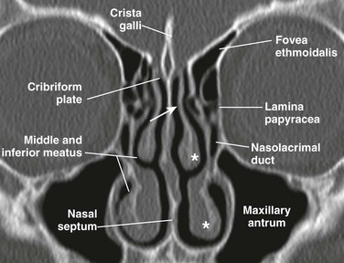 Nose and Sinonasal Cavities | Radiology Key