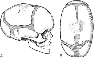 Craniosynostosis, Selected Craniofacial Syndromes, and ...