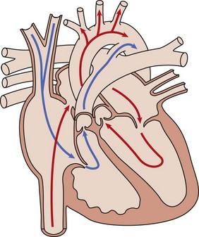 Prenatal Imaging and Therapy of Congenital Heart Disease ...