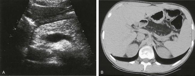 Histology of the human pancreas with fatty infiltration ...  Fatty Pancreas