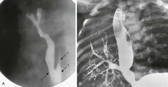 Congenital and Neonatal Abnormalities   Radiology Key