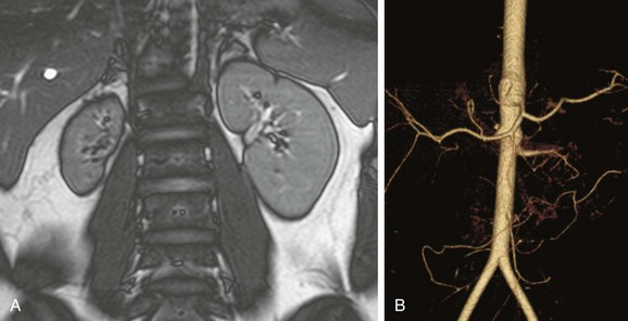 Vascular conditions radiology key for Aortic mural calcification