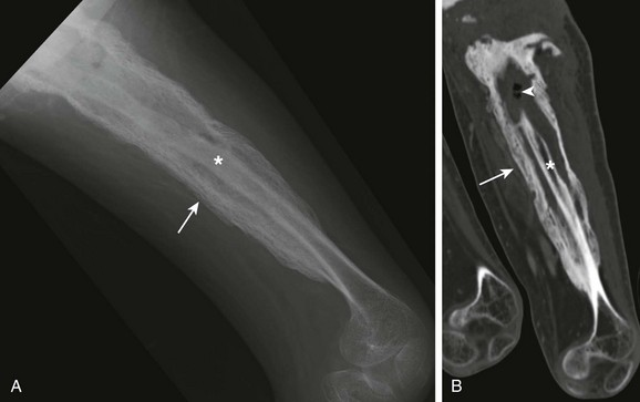 Musculoskeletal Infections | Radiology Key