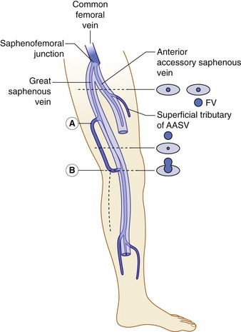 Anatomy of the lower limb venous system and assessment of venous figure 136 a diagrammatic representation of the saphenous compartments containing the great saphenous vein gsv and anterior accessory saphenous vein publicscrutiny Image collections