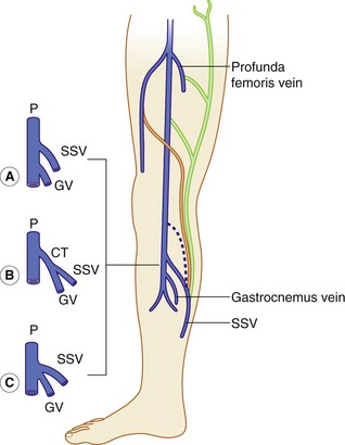 Anatomy Of The Lower Limb Venous System And Assessment Of Venous