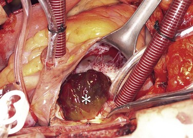 cardiac tumors Cardiac tumors are primary tumors or secondary tumors that form in the heart most cardiac tumors are noncancerous (benign) and some cardiac tumors are cancerous (malignant.