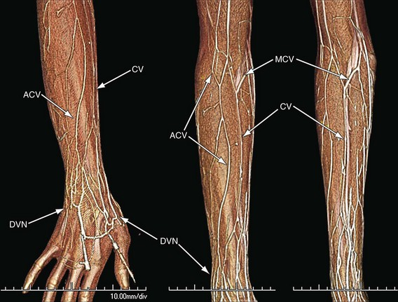 venous anatomy of the extremities | radiology key, Cephalic Vein