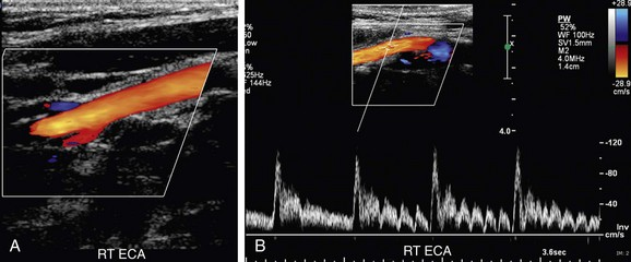 Ultrasound Evaluation of the Carotid Arteries | Radiology Key