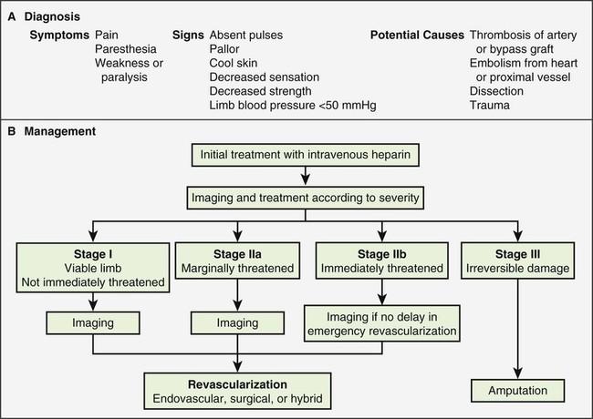Acute Lower Extremity Ischemia   Radiology Key