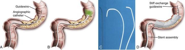 rectosigmoid rák stent