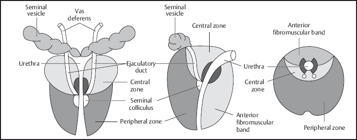 The Prostate and Seminal Vesicles | Radiology Key