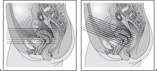 The Uterus And Vagina