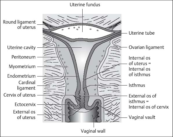 the uterus and vagina radiology key Diagram of Fibroids in Uterus