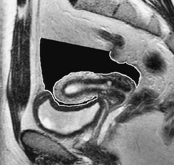 The uterus and vagina radiology key image ccuart Image collections