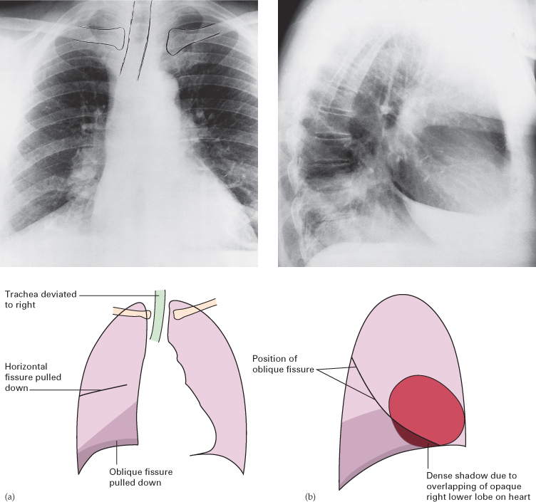 chest radiology A structured approach to interpretation of the chest x ray this goes through the abc approach to the chest x ray giving pointers to interpretation.