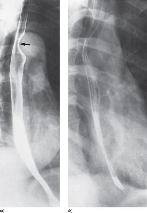 Gastrointestinal Tract Radiology Key