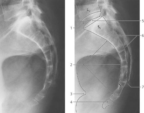 spine radiology key