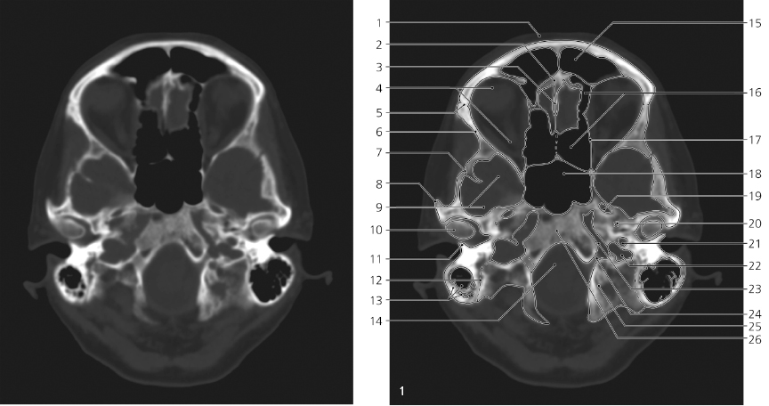 skull | radiology key, Human Body