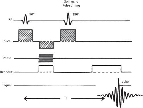 pulse diagram mri wiring diagram list Uterine Fibroid Embolization Diagram