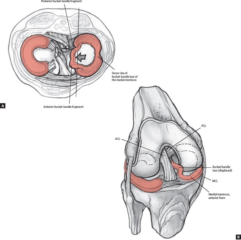 The Knee | Radiology Key