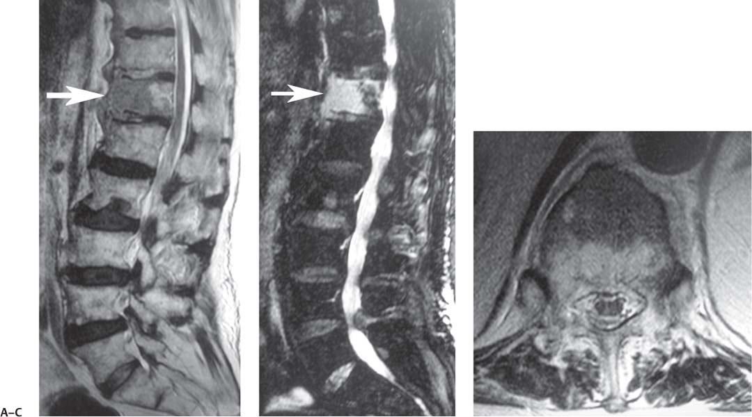 mri of spine essay Whiplash, though it sounds it is marked by an injury to the cervical spine by a jolting movement of the head or an mri is completed.