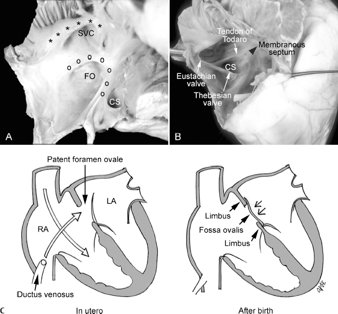 Normal Cardiovascular Anatomy for Imaging | Radiology Key