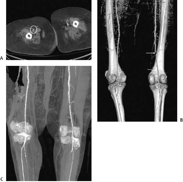 37 Superficial Femoral Artery Angioplasty   Radiology Key