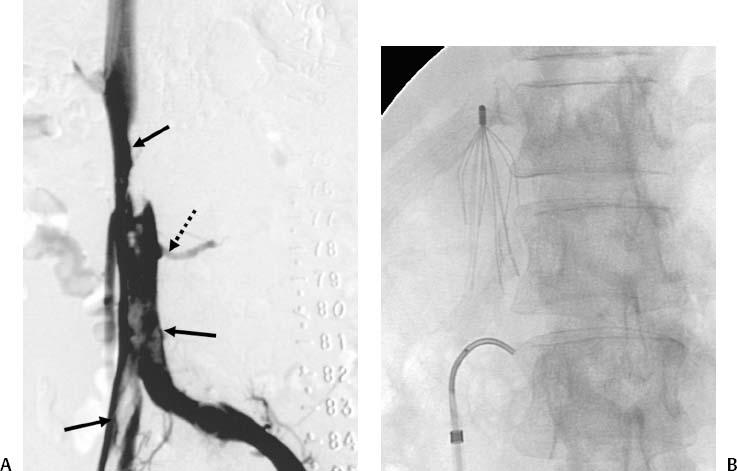 Diagnosis and management of superior vena cava syndrome