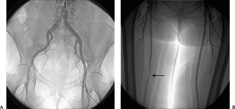 66 Superficial Femoral Artery Cryoplasty Radiology Key