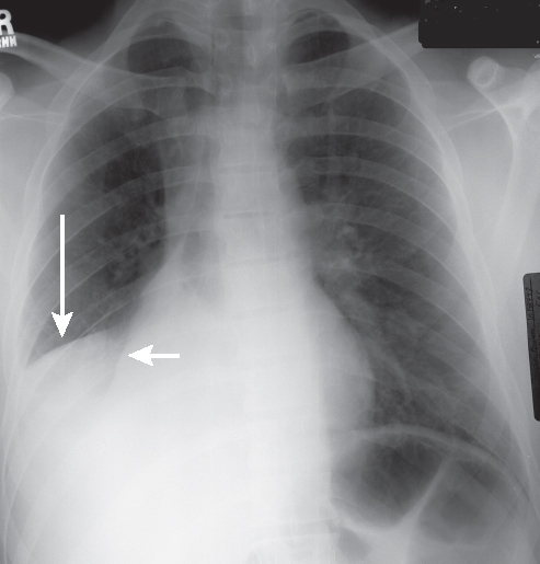 44 Combined Right Middle And Lower Lobe Atelectasis