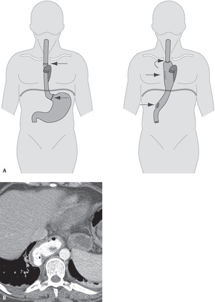 193 Postoperative Esophagectomy Chest