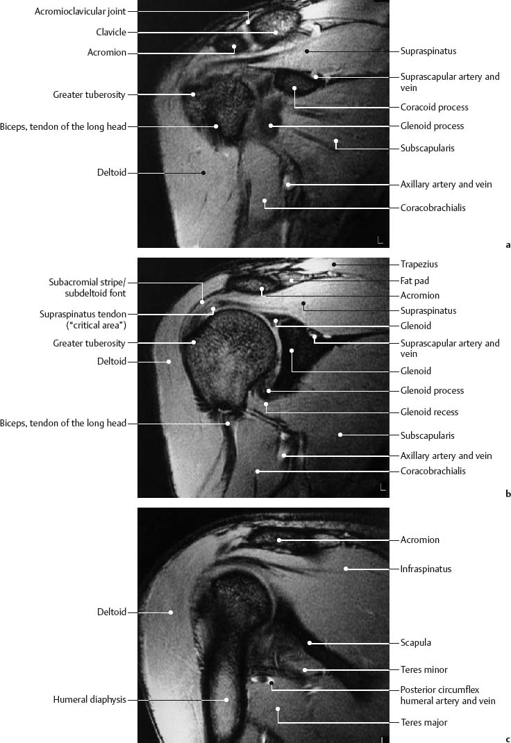 Shoulder Radiology Key