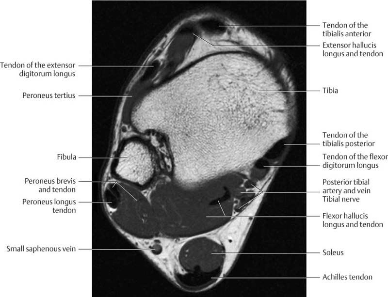 Ankle And Foot Radiology Key