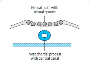 Malformations of the Spinal Canal | Radiology Key