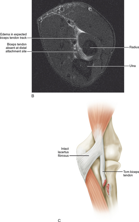 Imaging Of The Elbow Radiology Key
