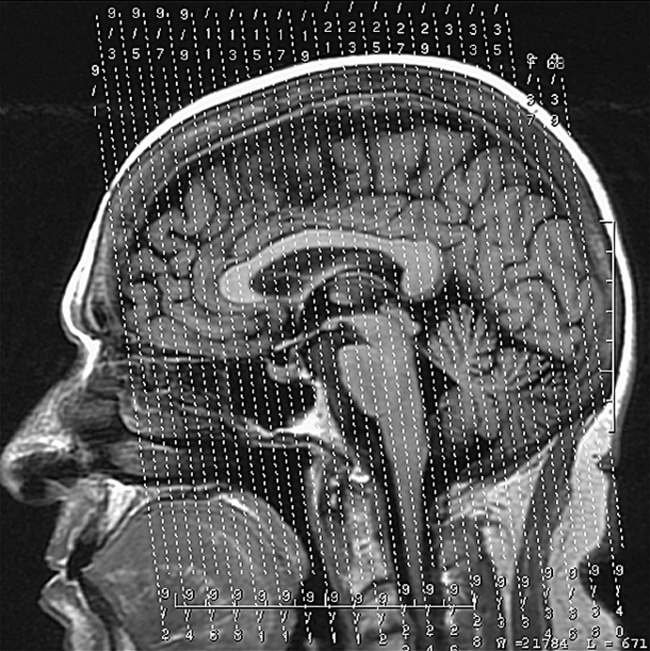 MRI of the Head and Neck | Radiology Key